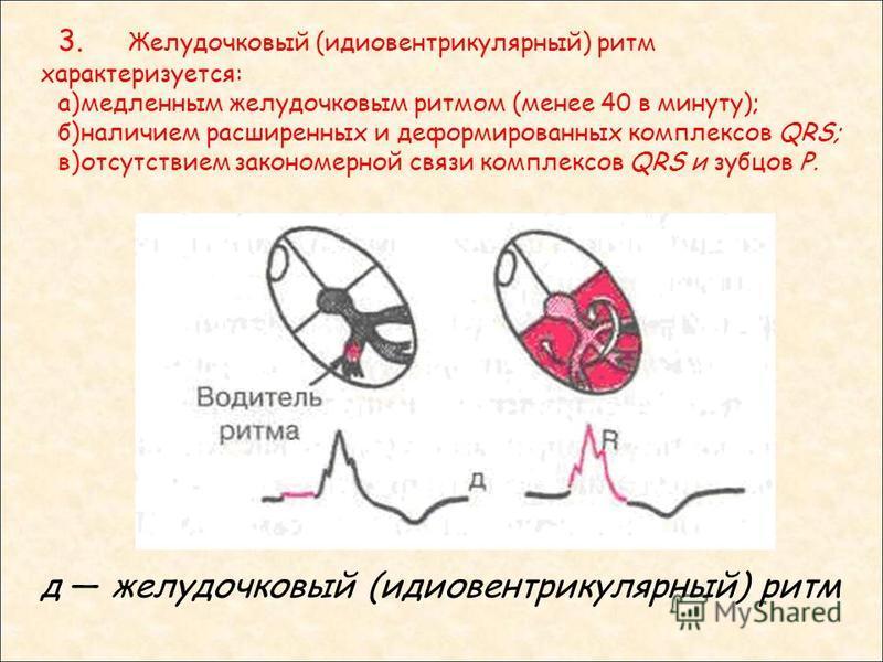 д желудочковый (идиовентрикулярный) ритм 3. Желудочковый (идиовентрикулярный) ритм характеризуется: а)медленным желудочковым ритмом (менее 40 в минуту); б)наличием расширенных и деформированных комплексов QRS; в)отсутствием закономерной связи комплек