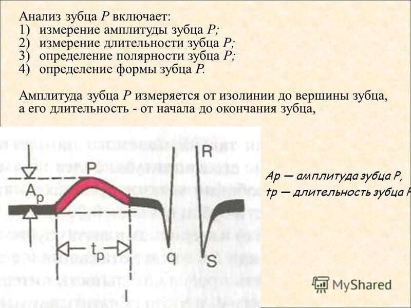 Анализ зубца Р включает: 1)измерение амплитуды зубца Р; 2)измерение длительности зубца Р; 3)определение полярности зубца Р; 4)определение формы зубца Р. Амплитуда зубца Р измеряется от изолинии до вершины зубца, а его длительность - от начала до окон