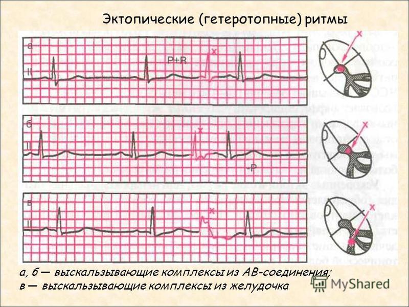 Эктопические (гетеротопные) ритмы а, б выскальзывающие комплексы из АВ-соединения; в выскальзывающие комплексы из желудочка