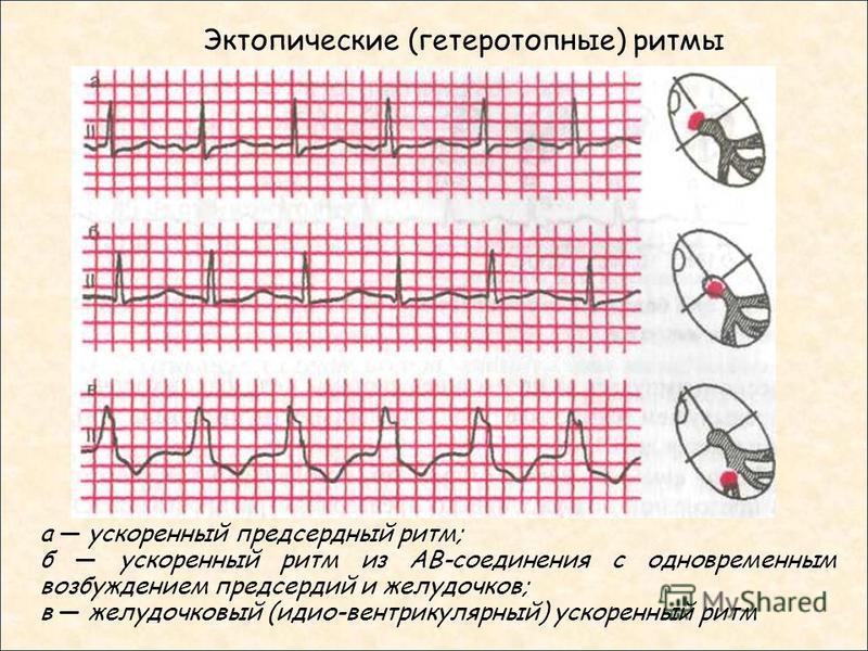 Эктопические (гетеротопные) ритмы а ускоренный предсердный ритм; б ускоренный ритм из АВ-соединения с одновременным возбуждением предсердий и желудочков; в желудочковый (идио-вентрикулярный) ускоренный ритм