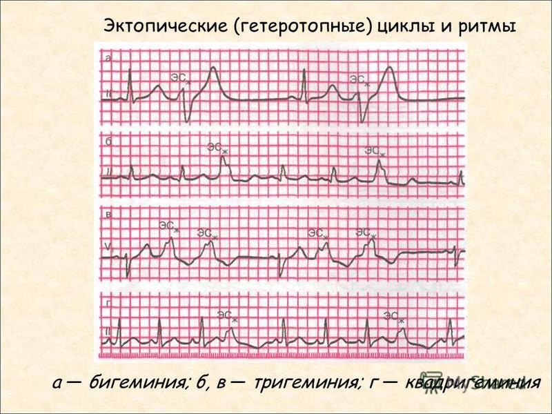 Эктопические (гетеротопные) циклы и ритмы а бигеминия; б, в тригеминия; г квадригеминия