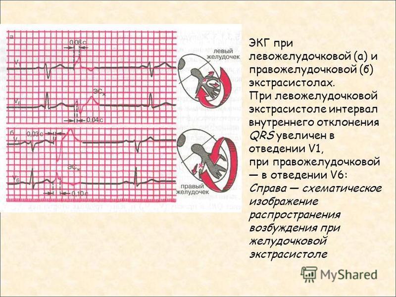 ЭКГ при левожелудочковой (а) и правожелудочковой (б) экстрасистолах. При левожелудочковой экстрасистоле интервал внутреннего отклонения QRS увеличен в отведении V1, при правожелудочковой в отведении V6: Справа схематическое изображение распространени