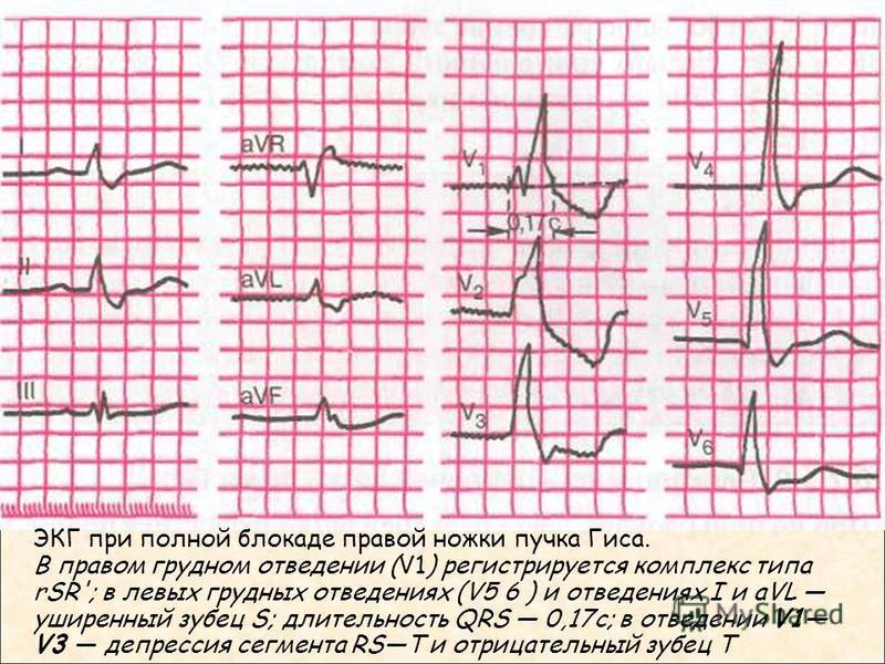ЭКГ при полной блокаде правой ножки пучка Гиса. В правом грудном отведении (V1) регистрируется комплекс типа rSR'; в левых грудных отведениях (V5 6 ) и отведениях I и aVL уширенный зубец S; длительность QRS 0,17 с; в отведении V1 V3 депрессия сегмен