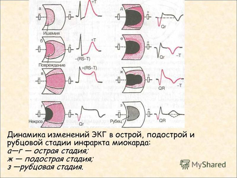Динамика изменений ЭКГ в острой, подострой и рубцовой стадии инфаркта миокарда: аг острая стадия; ж подострая стадия; з рубцовая стадия.