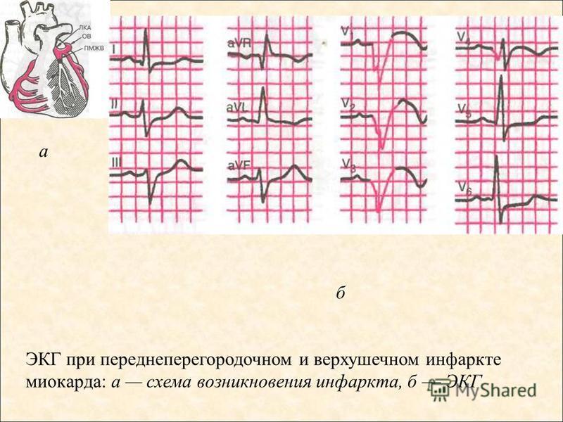 ЭКГ при переднеперегородочном и верхушечном инфаркте миокарда: а схема возникновения инфаркта, б ЭКГ а б