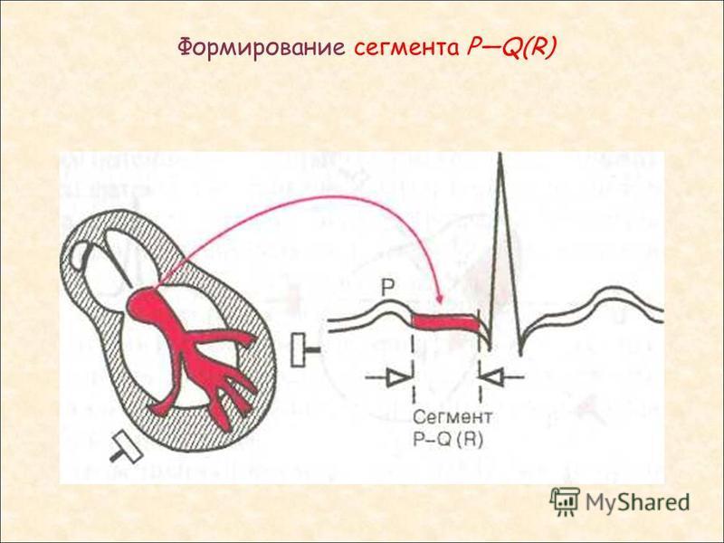 Формирование сегмента PQ(R)