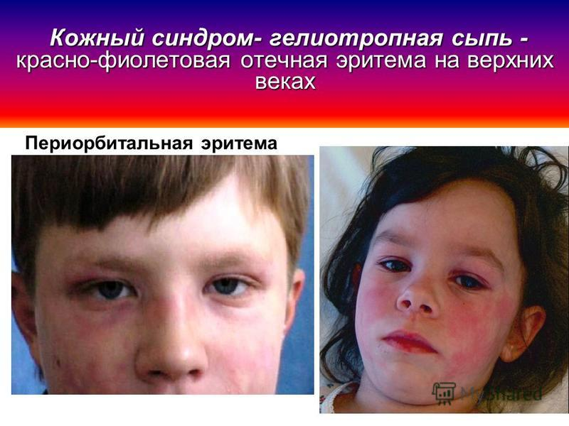 Периорбитальная эритема Кожный синдром- гелиотропная сыпь - красно-фиолетовая отечная эритема на верхних веках Кожный синдром- гелиотропная сыпь - красно-фиолетовая отечная эритема на верхних веках