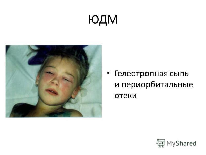 ЮДМ Гелеотропная сыпь и периорбитальные отеки