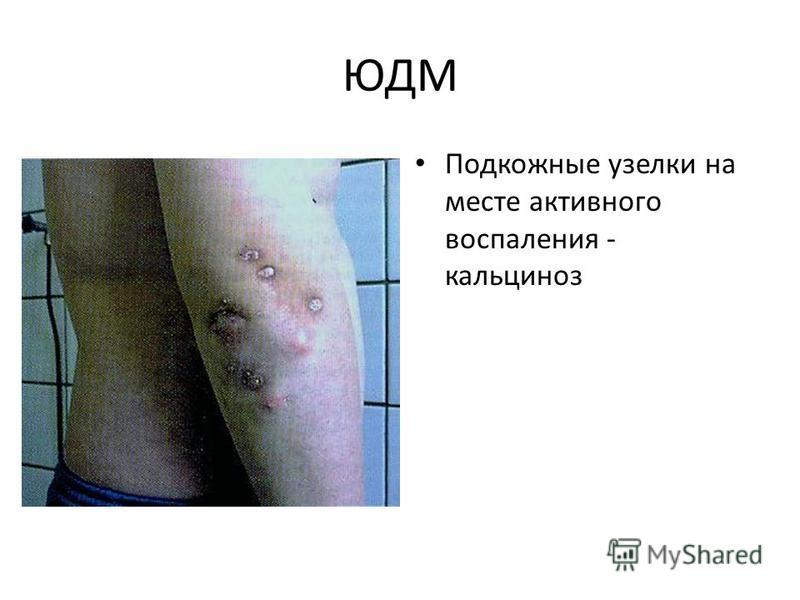 ЮДМ Подкожные узелки на месте активного воспаления - кальциноз