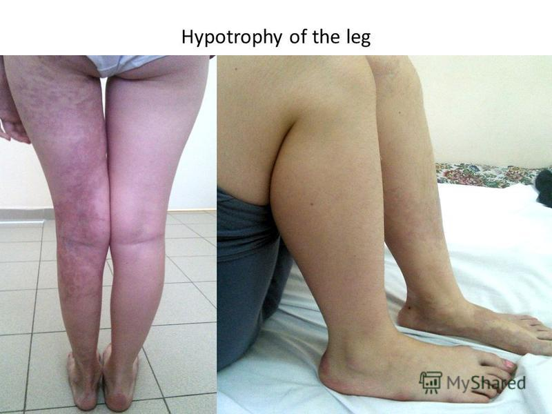 Hypotrophy of the leg