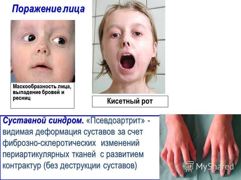 Поражение лица Маскообразность лица, выпадение бровей и ресниц Кисетный рот Суставной синдром. «Псевдоартрит» - видимая деформация суставов за счет фиброзно-склеротических изменений периартикулярных тканей с развитием контрактур (без деструкции суста