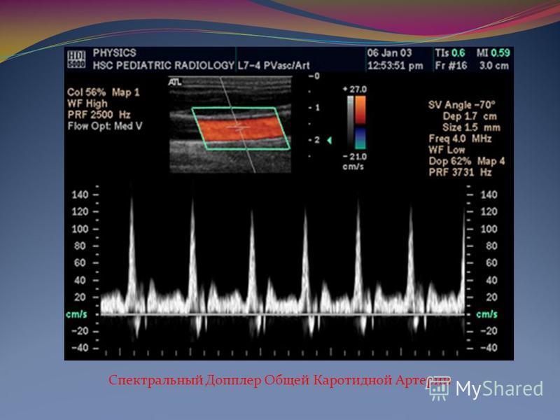 С помощью ультразвукового эффекта Доплера изучают характер движения сердечных клапанов измеряют скорость кровотока.
