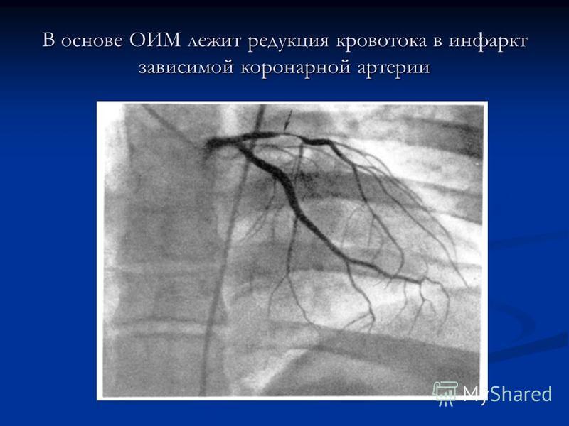 В основе ОИМ лежит редукция кровотока в инфаркт зависимой коронарной артерии