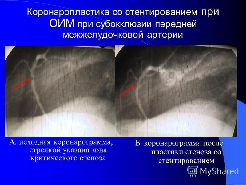 Коронаропластика со стентированием при ОИМ при субокклюзии передней межжелудочковой артерии А. исходная коронарограмма, стрелкой указана зона критического стеноза Б. коронарограмма после пластики стеноза со стентированием А Б