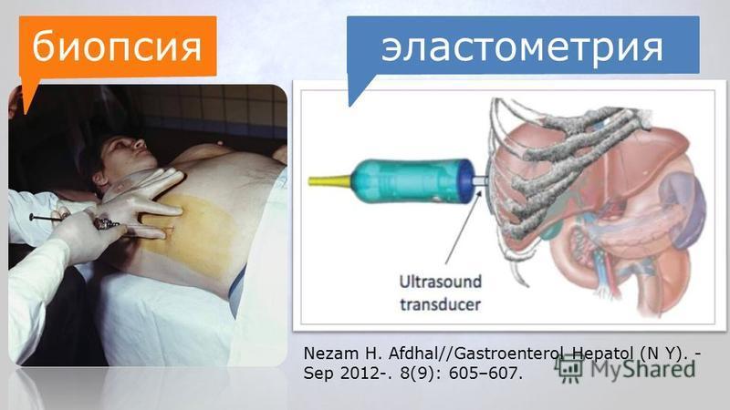 Nezam H. Afdhal//Gastroenterol Hepatol (N Y). - Sep 2012-. 8(9): 605–607. биопсияэластометрия