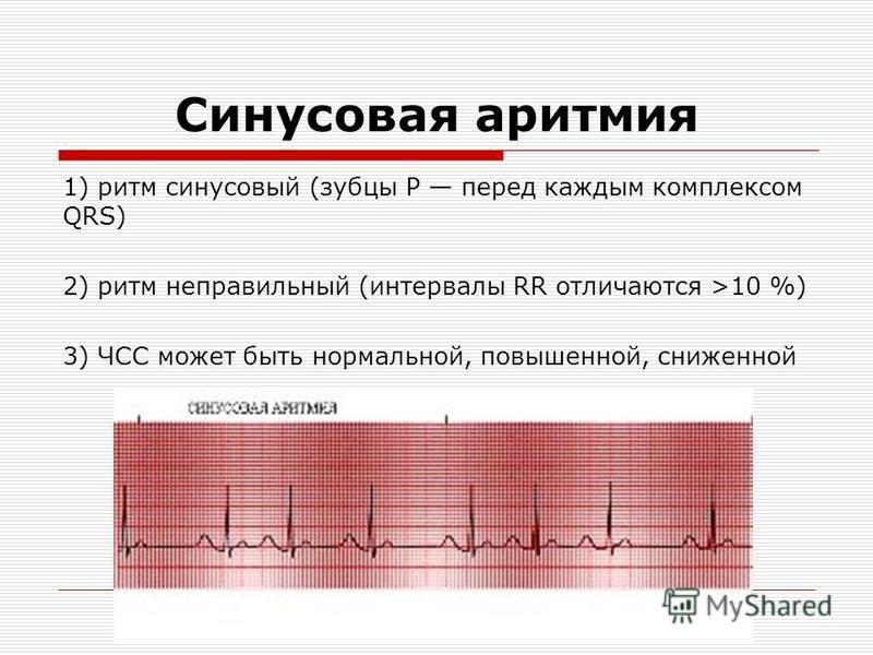 Синусовая аритмия 1) ритм синусовый (зубцы P перед каждым комплексом QRS) 2) ритм неправильный (интервалы RR отличаются >10 %) 3) ЧСС может быть нормальной, повышенной, сниженной