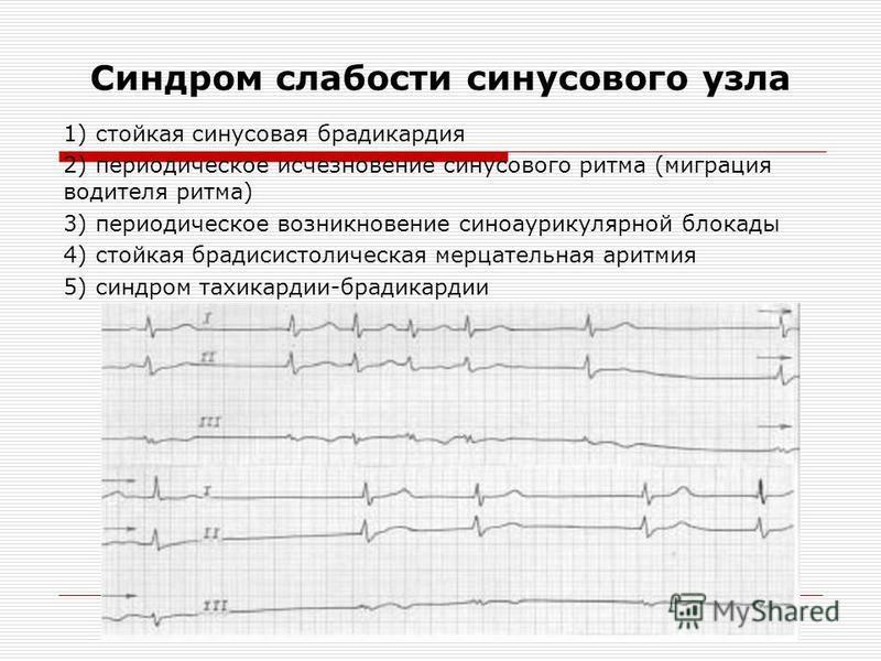 Синдром слабости синусового узла 1) стойкая синусовая брадикардия 2) периодическое исчезновение синусового ритма (миграция водителя ритма) 3) периодическое возникновение синоаурикулярной блокады 4) стойкая брадисистолическая мерцательная аритмия 5) с