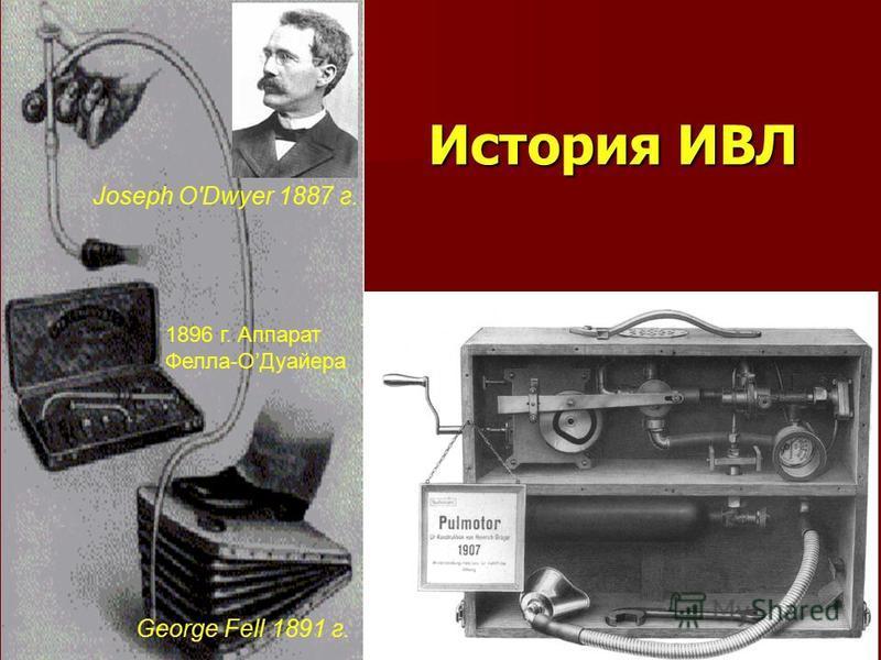 История ИВЛ Joseph O'Dwyer 1887 г. George Fell 1891 г. 1896 г. Аппарат Фелла-ОДуайера