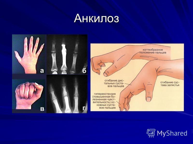 Анкилоз