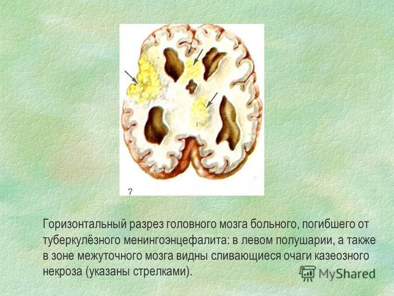 Горизонтальный разрез головного мозга больного, погибшего от туберкулёзного менингоэнцефалита: в левом полушарии, а также в зоне межуточного мозга видны сливающиеся очаги казеозного некроза (указаны стрелками).