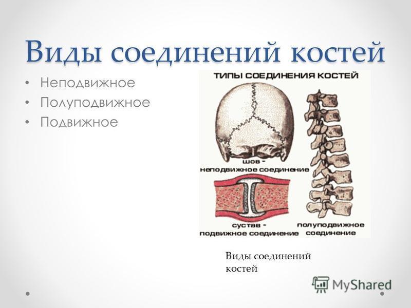 Виды соединений костей Неподвижное Полуподвижное Подвижное Виды соединений костей