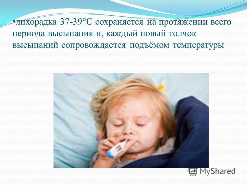 лихорадка 37-39°С сохраняется на протяжении всего периода высыпания и, каждый новый толчок высыпаний сопровождается подъёмом температуры