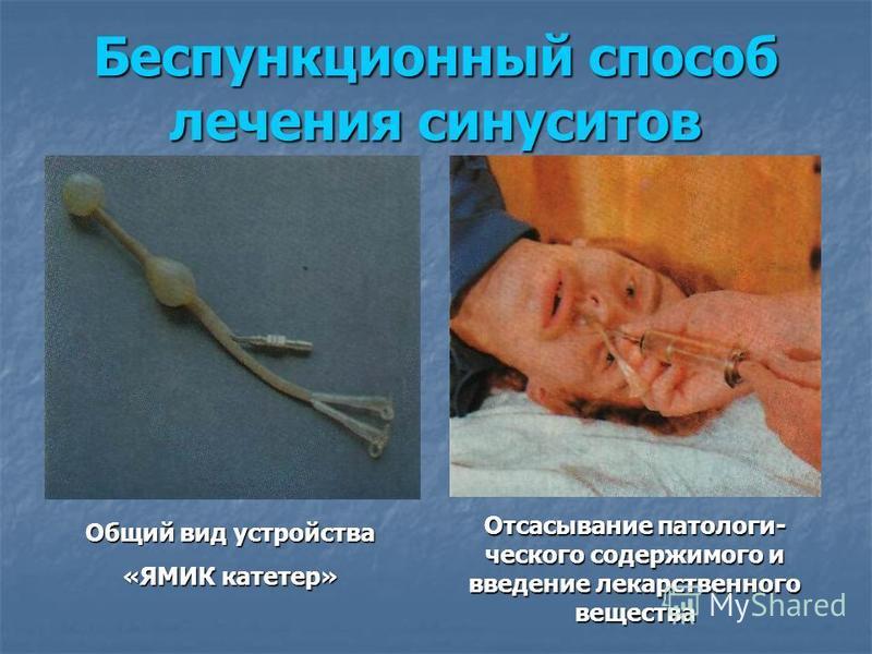 Беспункционный способ лечения синуситов Общий вид устройства «ЯМИК катетер» Отсасывание патологического содержимого и введение лекарственного вещества