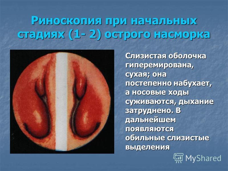 Риноскопия при начальных стадиях (1- 2) острого насморка Слизистая оболочка гиперемирована, сухая; она постепенно набухает, а носовые ходы суживаются, дыхание затруднено. В дальнейшем появляются обильные слизистые выделения
