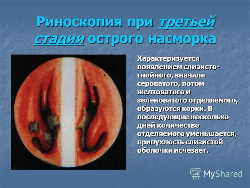 Риноскопия при третьей стадии острого насморка Характеризуется появлением слизисто- гнойного, вначале сероватого, потом желтоватого и зеленоватого отделяемого, образуются корки. В последующие несколько дней количество отделяемого уменьшается, припухл