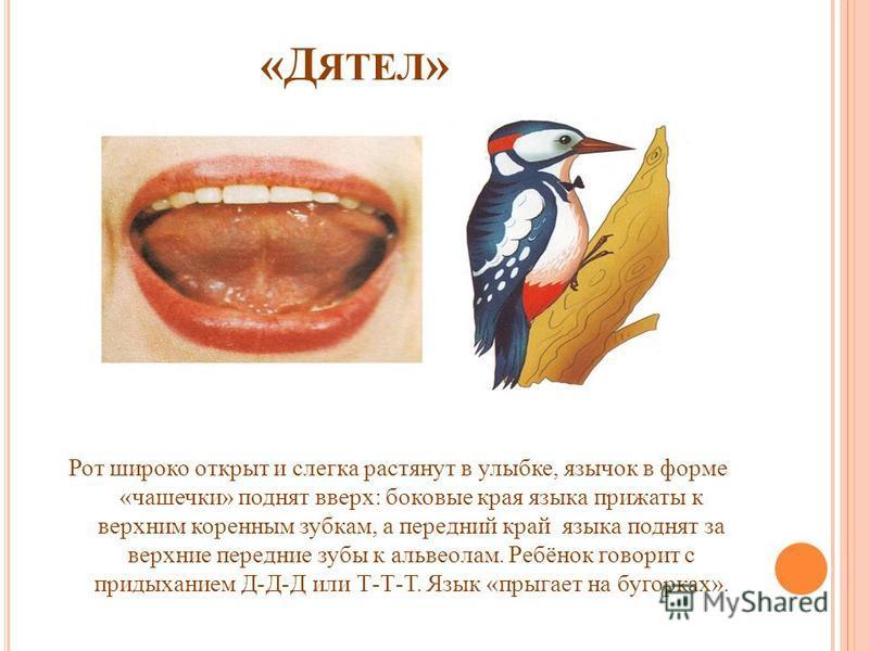 «Д ЯТЕЛ » Рот широко открыт и слегка растянут в улыбке, язычок в форме «чашечки» поднят вверх: боковые края языка прижаты к верхним коренным зубкам, а передний край языка поднят за верхние передние зубы к альвеолам. Ребёнок говорит с придыханием Д-Д-