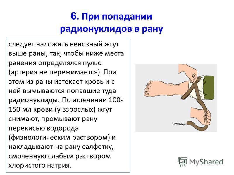 следует наложить венозный жгут выше раны, так, чтобы ниже места ранения определялся пульс (артерия не пережимается). При этом из раны истекает кровь и с ней вымываются попавшие туда радионуклиды. По истечении 100- 150 мл крови (у взрослых) жгут снима