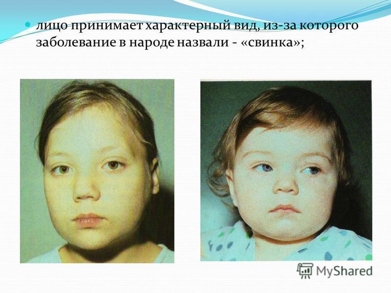 лицо принимает характерный вид, из-за которого заболевание в народе назвали - «свинка»;