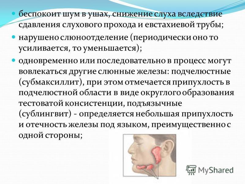 беспокоит шум в ушах, снижение слуха вследствие сдавления слухового прохода и евстахиевой трубы; нарушено слюноотделение (периодически оно то усиливается, то уменьшается); одновременно или последовательно в процесс могут вовлекаться другие слюнные же