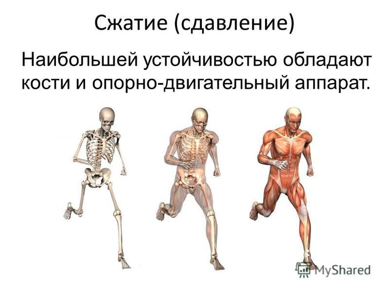 Сжатие (сдавление) Наибольшей устойчивостью обладают кости и опорно-двигательный аппарат.