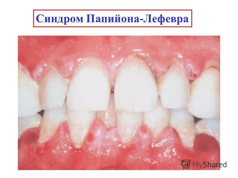 Синдром Папийона-Лефевра