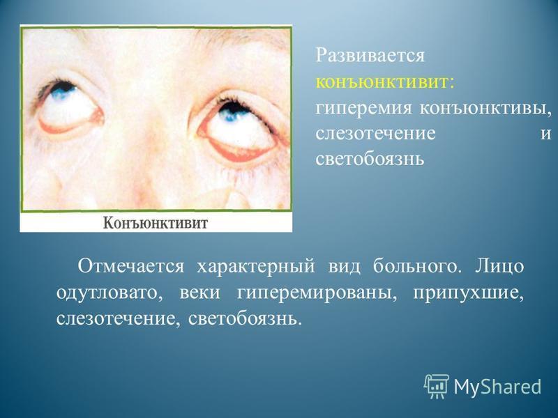 Отмечается характерный вид больного. Лицо одутловато, веки гиперемированы, припухшие, слезотечение, светобоязнь. Развивается конъюнктивит: гиперемия конъюнктивы, слезотечение и светобоязнь