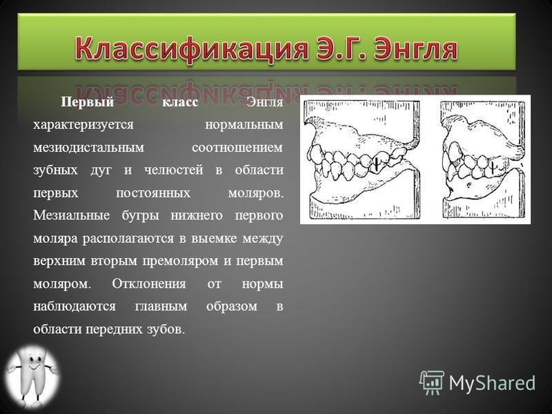 Первый класс Энгля характеризуется нормальным мезиодистальным соотношением зубных дуг и челюстей в области первых постоянных моляров. Мезиальные бугры нижнего первого моляра располагаются в выемке между верхним вторым премоляром и первым моляром. Отк