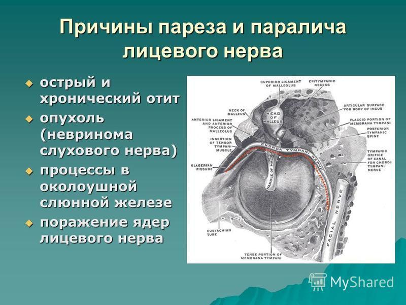 Причины пареза и паралича лицевого нерва острый и хронический отит острый и хронический отит опухоль (невринома слухового нерва) опухоль (невринома слухового нерва) процессы в околоушной слюнной железе процессы в околоушной слюнной железе поражение я
