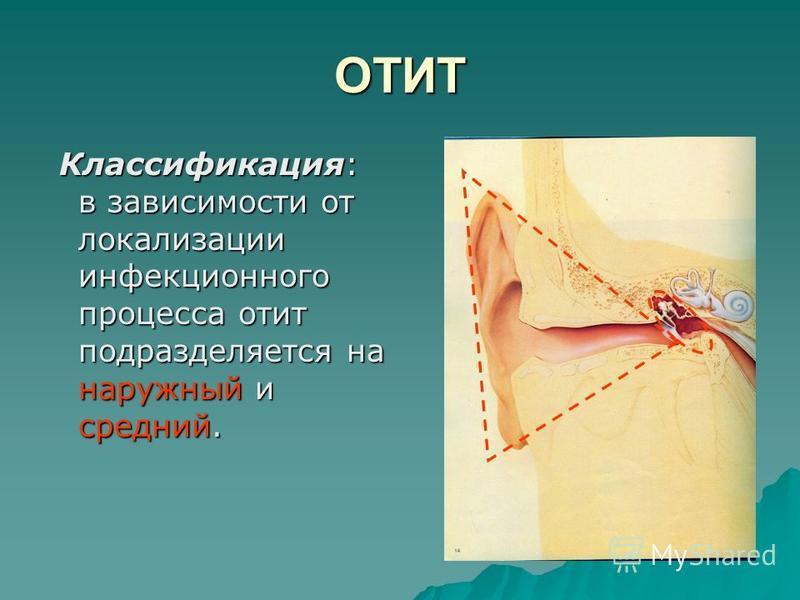 ОТИТ Классификация: в зависимости от локализации инфекционного процесса отит подразделяется на наружный и средний. Классификация: в зависимости от локализации инфекционного процесса отит подразделяется на наружный и средний.