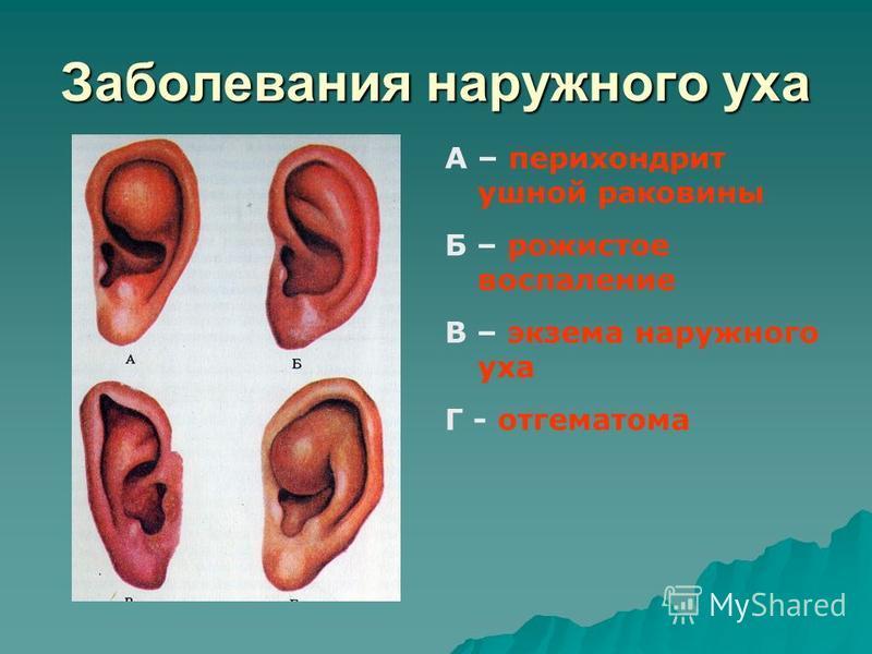 Заболевания наружного уха А – перихондрит ушной раковины Б – рожистое воспаление В – экзема наружного уха Г - отгематома