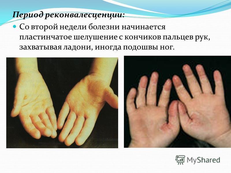 Период реконвалесценции: Со второй недели болезни начинается пластинчатое шелушение с кончиков пальцев рук, захватывая ладони, иногда подошвы ног.