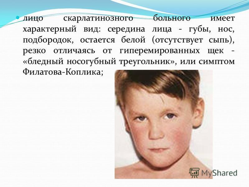 лицо скарлатинозного больного имеет характерный вид: середина лица - губы, нос, подбородок, остается белой (отсутствует сыпь), резко отличаясь от гиперемированных щек - «бледный носогубный треугольник», или симптом Филатова-Коплика;