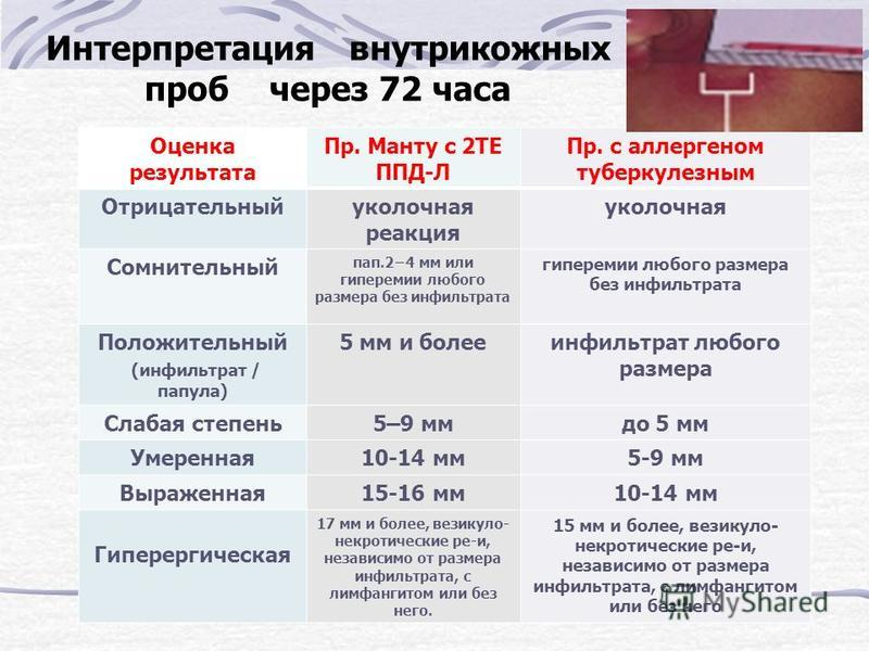 Интерпретация внутрикожных проб через 72 часа Оценка результата Пр. Манту с 2ТЕ ППД-Л Пр. с аллергеном туберкулезным Отрицательныйуколочная реакция уколочная Сомнительный пап.24 мм или гиперемии любого размера без инфильтрата гиперемии любого размера