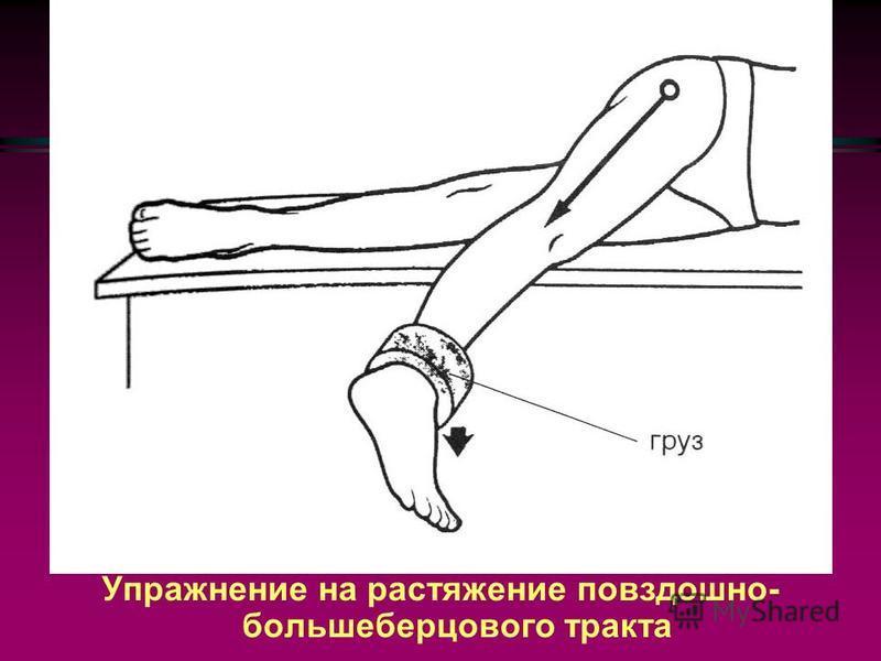 Щелчки в тазобедреннойном суставе (причины): Трение подвздошно-большеберцового тракта о большой вертел бедреннойной кости, Трение сухожилия подвздошно-поясничной мышцы о подвздошно-лобковое возвышение, Трение большой ягодичной мышцы о большой вертел