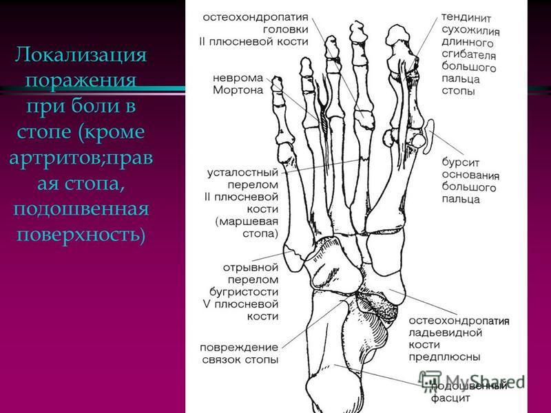 Типичная локализация артритов и остеоартроза на стопе (правая стопа, подошвенная поверхность).