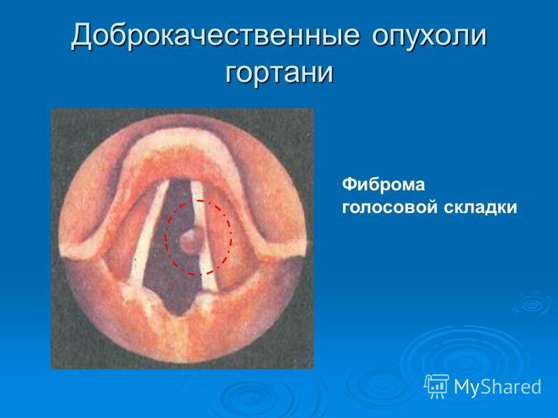 Доброкачественные опухоли гортани Фиброма голосовой складки