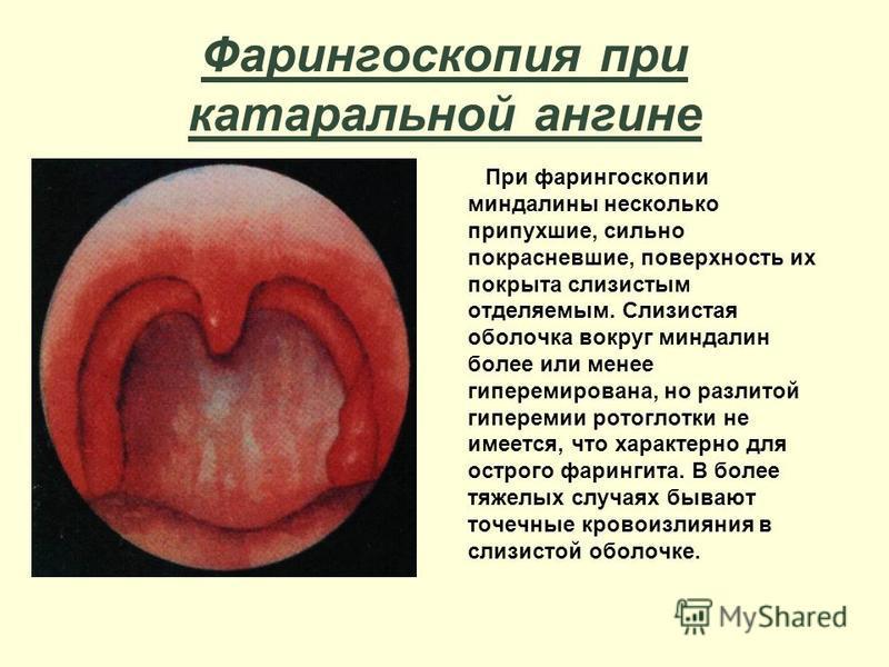 Фарингоскопия при катаральной ангине При фарингоскопии миндалины несколько припухшие, сильно покрасневшие, поверхность их покрыта слизистым отделяемым. Слизистая оболочка вокруг миндалин более или менее гиперемирована, но разлитой гиперемии ротоглотк