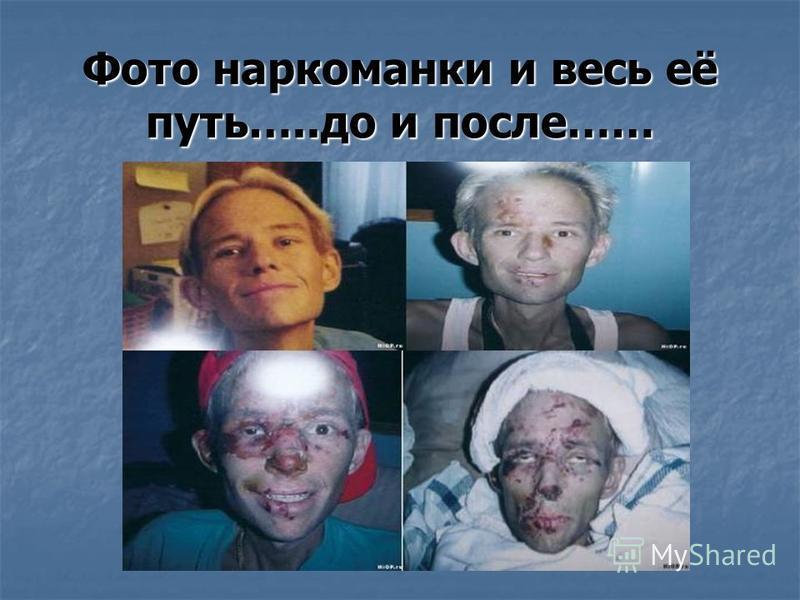 Фото наркоманки и весь её путь…..до и после……