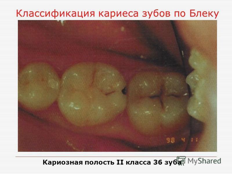 Классификация кариеса зубов по Блеку Кариозная полость II класса 36 зуба