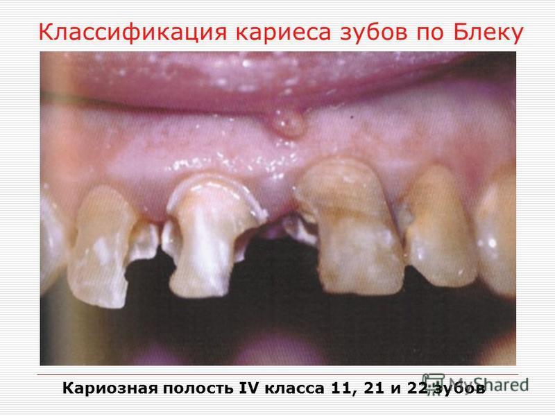 Классификация кариеса зубов по Блеку Кариозная полость IV класса 11, 21 и 22 зубов